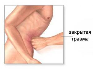 Силовое воздействие в область расположения органа может спровоцировать разрыв селезенки
