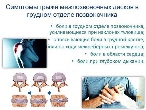 Симптомы грыжи межпозвоночных дисков в грудном отделе позвоночника