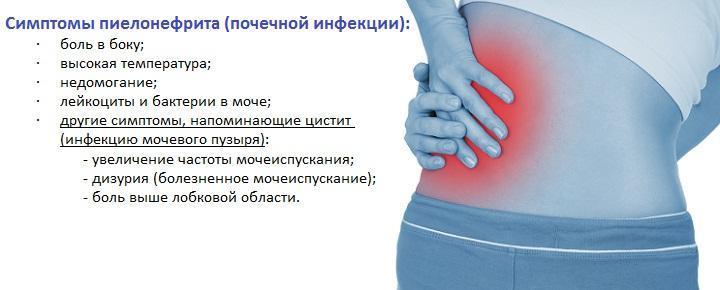 Симптомы и признаки пиелонефрита