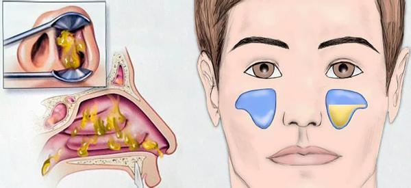 Синусит: симптомы и лечение у взрослых