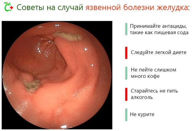 Диета при язве желудка и гастрите