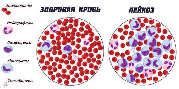 Состав крови лейкозе