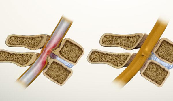 Стеноз позвоночного канала в поясничном и шейном отделе позвоночника, лечение стеноза позвоночного канала в клинике ЦЭЛТ.