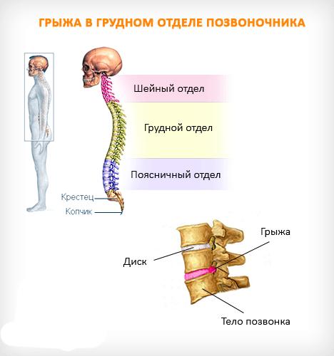 Строение позвоночника в грудном отделе и грыжа