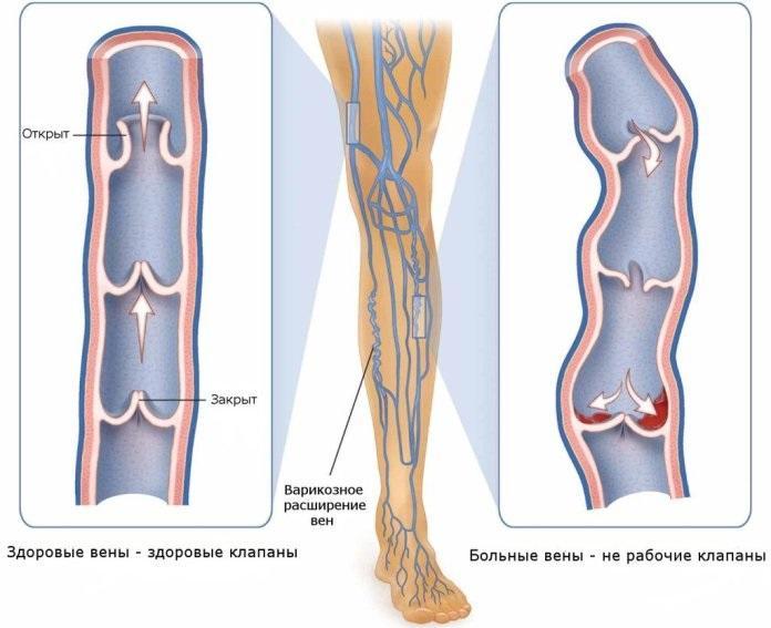 Схематичное изображение разницы между здоровыми и нерабочими клапанами