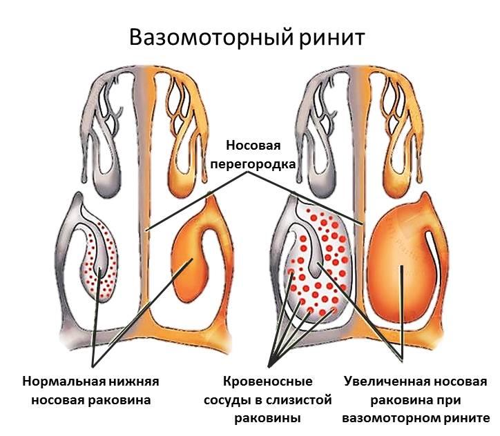 Схема вазомоторного ринита