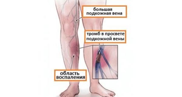 Тромб в просвете кожной вены