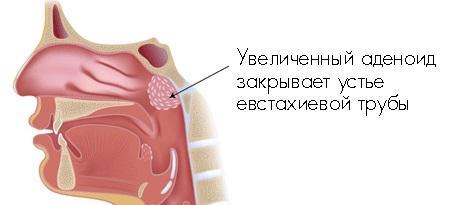 Увеличенный аденоид закрывает евстахиевой трубы