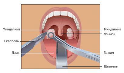 Хирургическое удаление аденоидов
