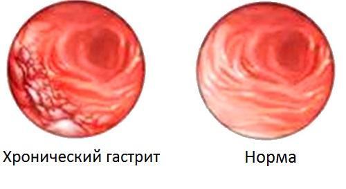 Хронический гастрит изнутри