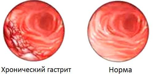 хронический гастрит запах изо рта
