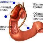 Чем лечить хронический холецистит: лекарства