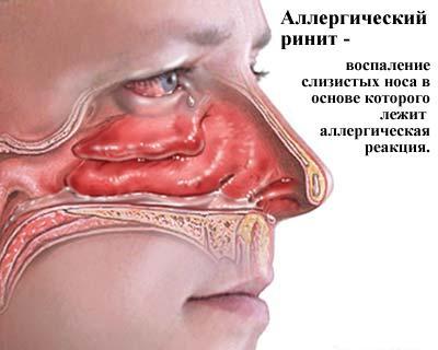 Что такое аллергический ринит