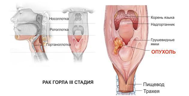 3 стадия рака горла