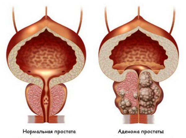Аденомы предстательной железы изнутри
