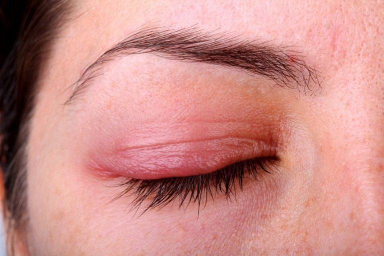 если потребуется чешутся глаза причины лечение верно Супермодель