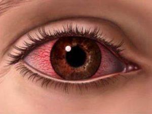 Аллергия на глазах: как лечить?