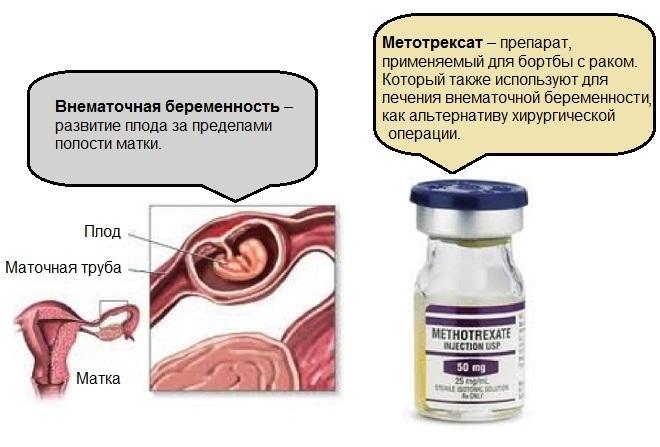 Альтернатива хирургической операции при внематочной беременности