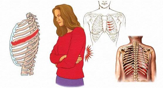 Боль при межреберной невралгии