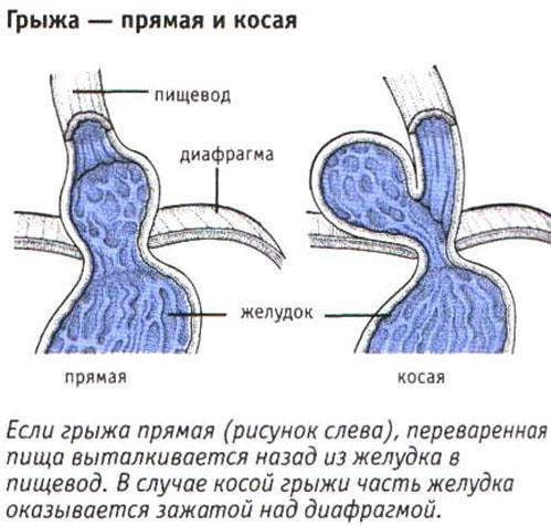 Виды грыжи желудка