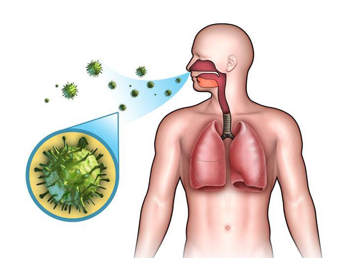 Вирусная пневмония – острое воспалительное заболевание, поражающее нижние отделы дыхательных путей