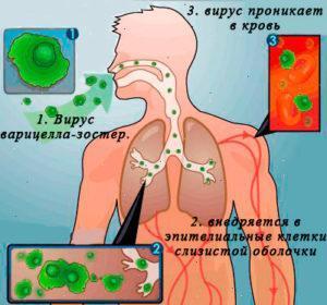 Внедрение вируса зостер в организм