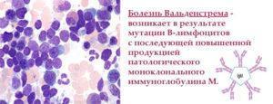 Возникновение болезни Вальденстрема