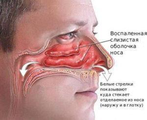Воспаление слизистой при насморке