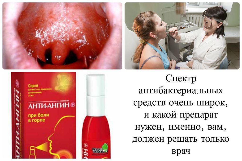 Выбор антибактериальных средств при фарингите