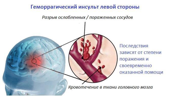 Геморрагический инсульт левой стороны