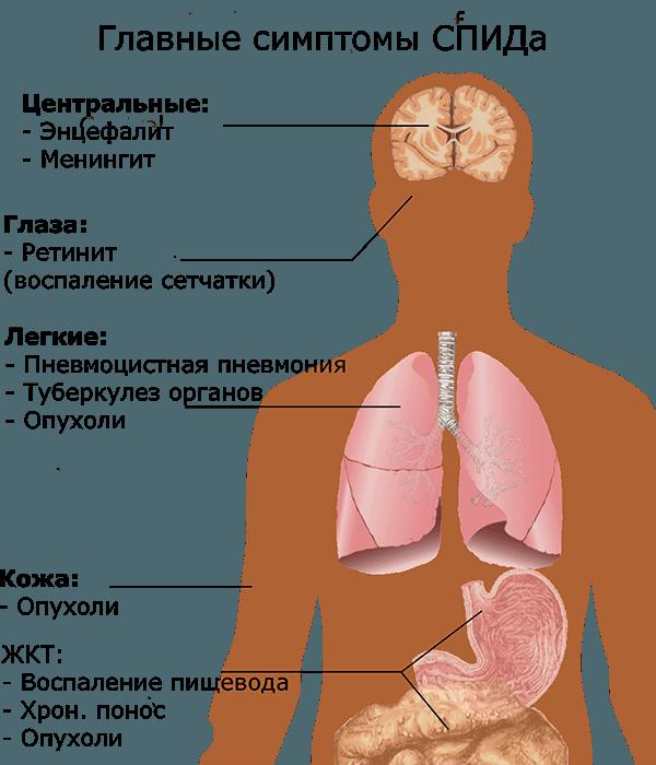 Главные симптомы СПИДа