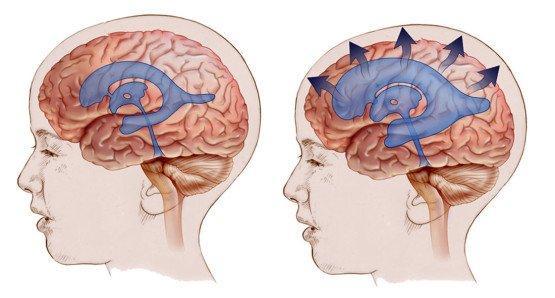 Лечение головной боли у детей при всд