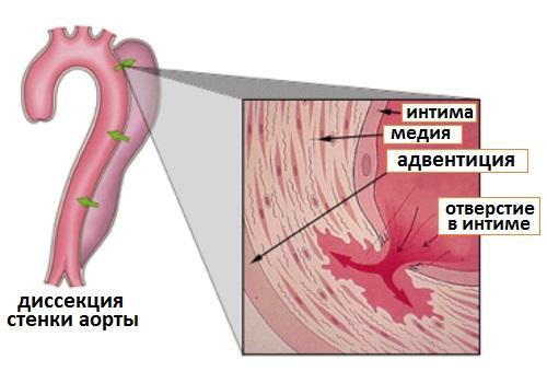 Диссекция стенки аорты
