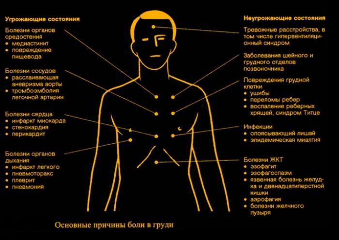 Заболевания, в зависимости от локализации боли