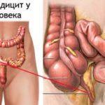 Какие симптомы при аппендиците?