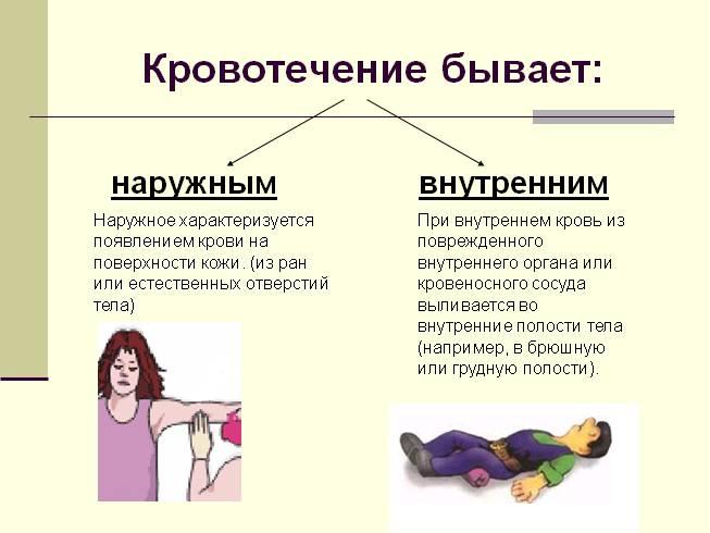 Каким бывает кровотечение