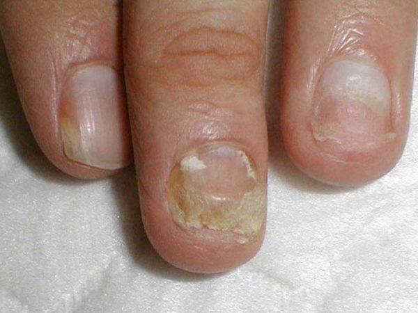 Как выглядит онихомикоз ногтей