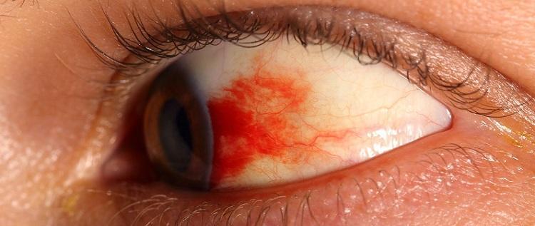 Как выглядит ретинопатия