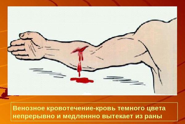 Как отличить венозное кровотечение