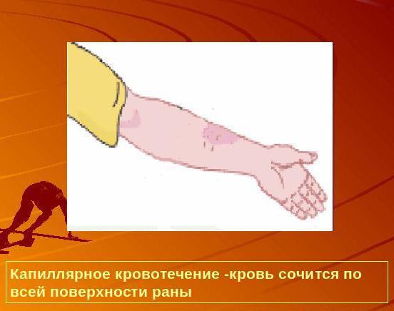 Как отличить капиллярное кровотечение