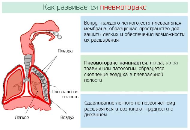 Как развивается пневмоторакс