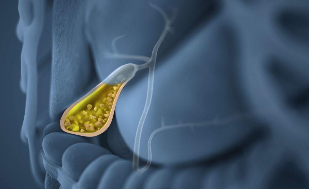 Калькулезный холецистит: симптомы и лечение