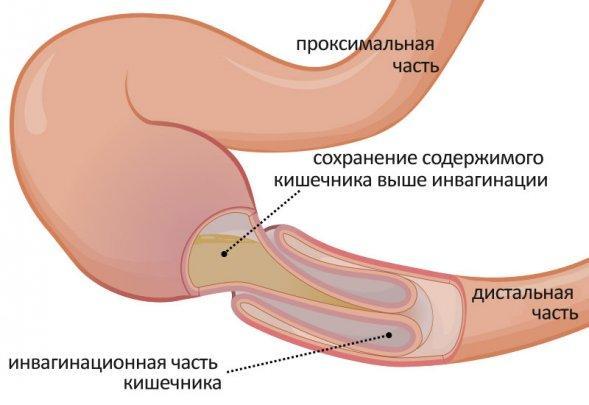 Простатит у мужчин Причины и симптомы воспаления