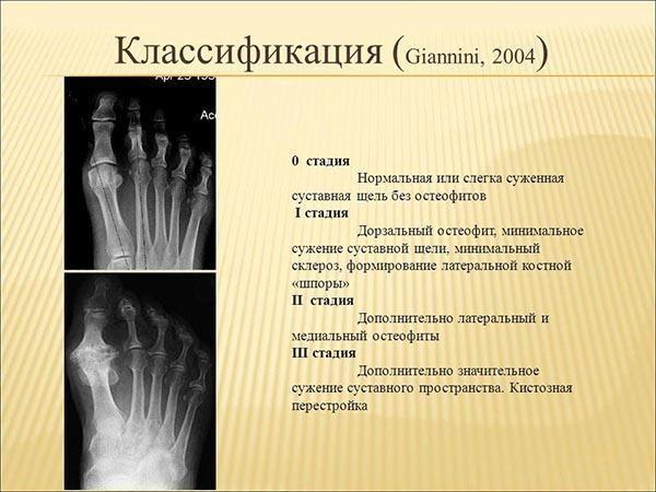 Классификация остеофитов