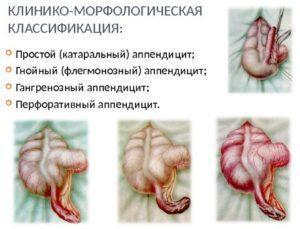 Классификация острого аппендицита