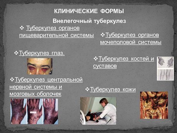 Клинические формы внелегочной формы туберкулеза