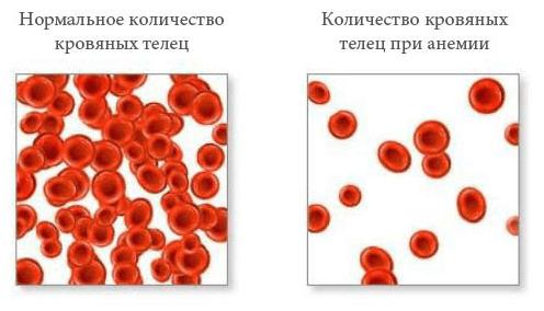 Количество кровяных телец при анемии