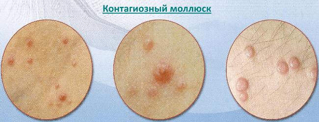 Контагиозные моллюски