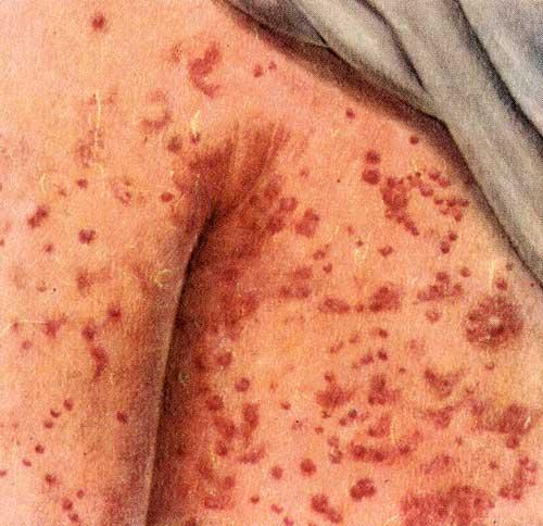 Коревая сыпь на коже груди и плеча (в начале высыпания)