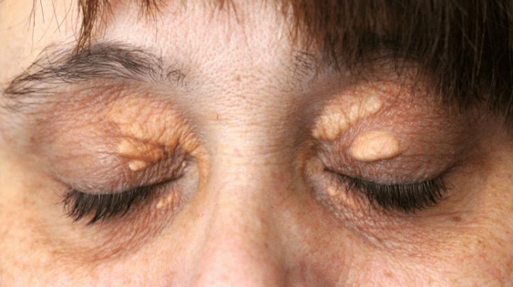 проблемы гинекологии прыщи на лице